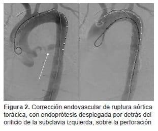 Corrección Endovascular de ruptura Aórtica Torácica