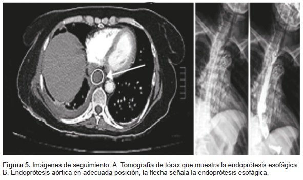 Tomografía de Tórax: Endoprótesis Esofágica y Endoprótesis Aórtica