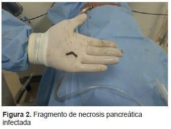 Fragmento de Necrosis Pancreática Infectada