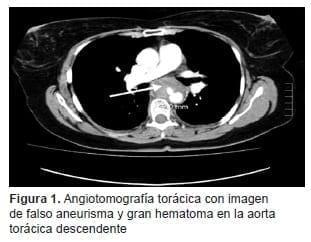Gran Hematoma en la Aorta Torácica Descendente
