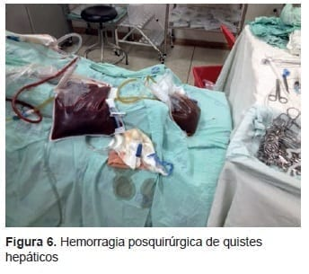 Hemorragia Posquirúrgica de Quistes Hepáticos