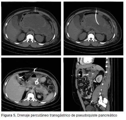 Drenaje Percutáneo Transgástrico de Pseudoquiste Pancreático