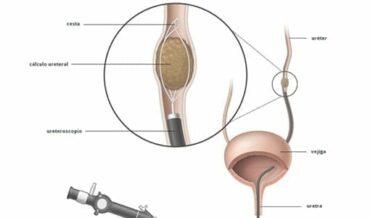 Ureterolitotomía Endoscópica
