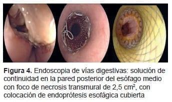 Endoscopia de Vías Digestivas