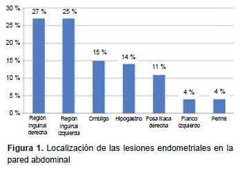 Lesiones endometriales en la pared abdominal