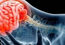 Encefalopatía Traumática Crónica