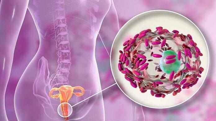 Remedios caseros para la vaginosis