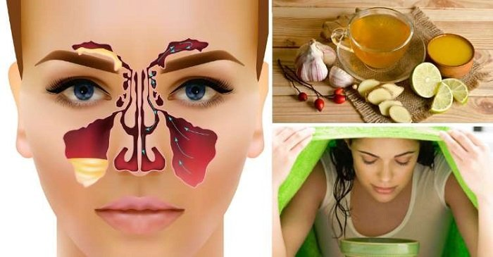 Remedios Caseros Para La Sinusitis Inflamación Nasal
