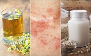 Remedios caseros dermatitis
