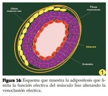 Adipositosis que limita la función efectiva del músculo liso