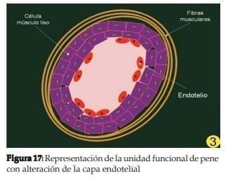 Representación de la unidad funcional de pene con alteración de la capa endotelial
