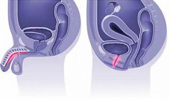 Obstrucción Ureteral