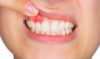 Remedios Caseros para la Gingivitis