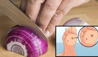 Remedios Caseros para las Verrugas