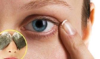 Remedios caseros para las ojeras