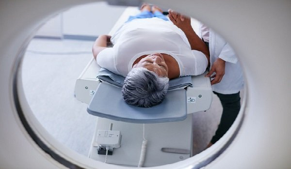 Radioterapia Cáncer de Cuello Uterino