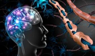 Remedios caseros para la Esclerosis Múltiple