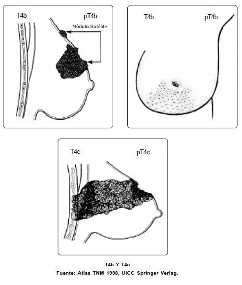 Carcinoma inflamatorio en el Seno