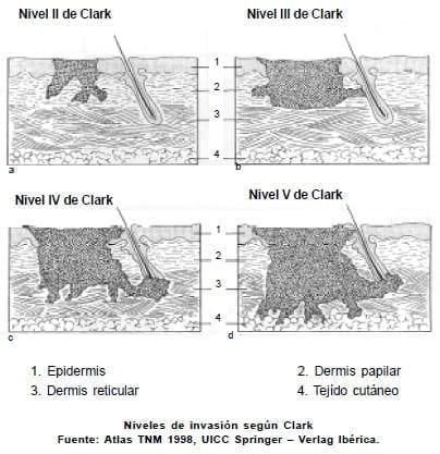 Melanoma - Niveles de invasión según Clark