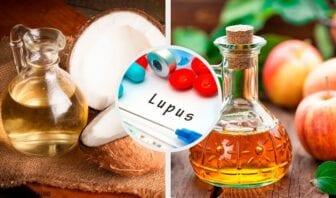 Remedios para el lupus