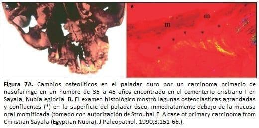 Carcinoma primario de nasofaringe en un hombre de 35 a 45 años