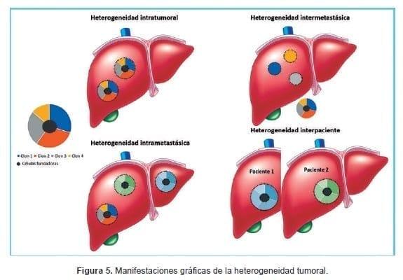 Manifestaciones gráficas de la heterogeneidad tumoral