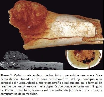 Quinto metatarsiano de homínido exhibe una masa ósea hemiesférica