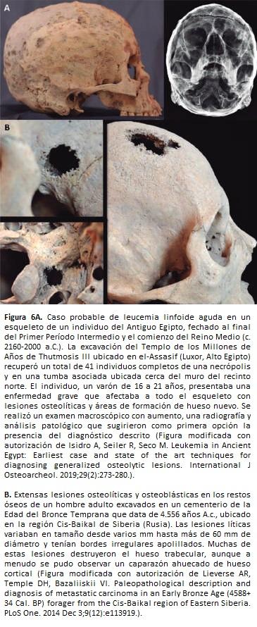 Leucemia linfoide aguda en un esqueleto de un individuo del Antiguo