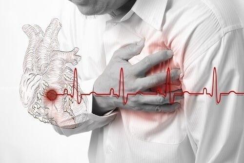 Remedios Caseros para la Arritmia Cardíaca