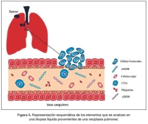 Biopsia líquida provenientes de una neoplasia pulmonar