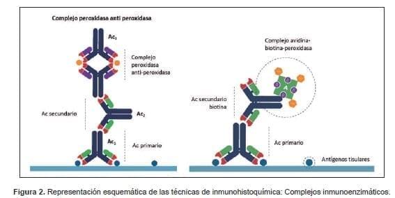 Representación esquemática de las técnicas de inmunohistoquímica