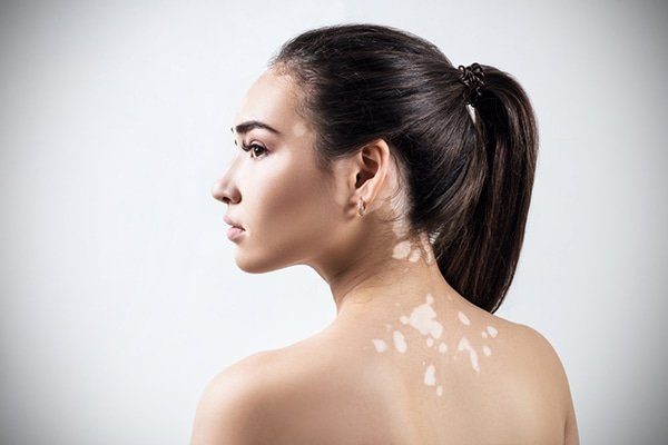 Remedios Caseros para el Vitiligo o Leucodermia