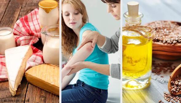 Remedios Caseros para la Psoriasis
