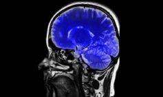 Manual de procedimientos en Neurocirugía