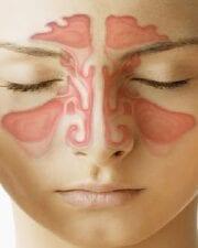 Otorrinolaringología. 27 No. 1