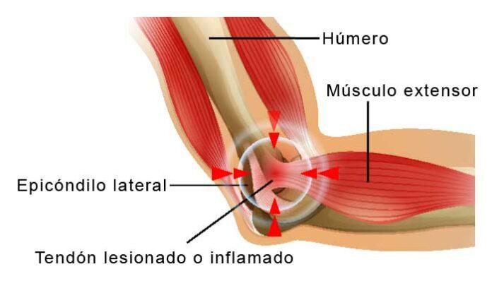 Cómo tratar la epicondilitis